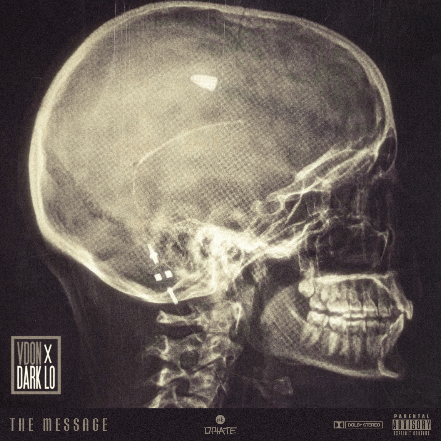 V.Don – The Message ft. Dark lo